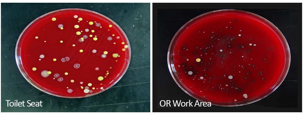 Cultured bacteria collected from toilet seat compared to OR work area
